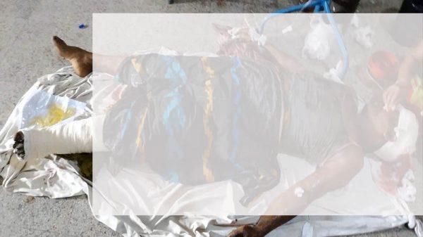 দামুডহুদায় বোমা বানানোর সময়  বিস্ফোরণে  আহত ১