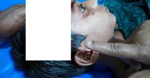 কুষ্টিয়ায় মাদক বিক্রেতার হামলায় ৪ বছরের শিশু জখম