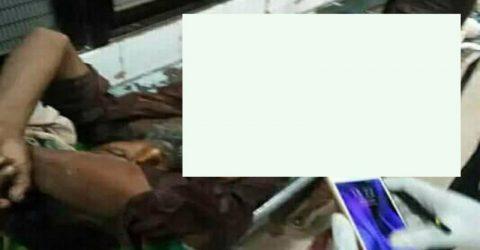 দৌলতপুরে পূর্ব শত্রুতার জের ধরে চাচাতো ভাইকে কুপিয়ে আহত